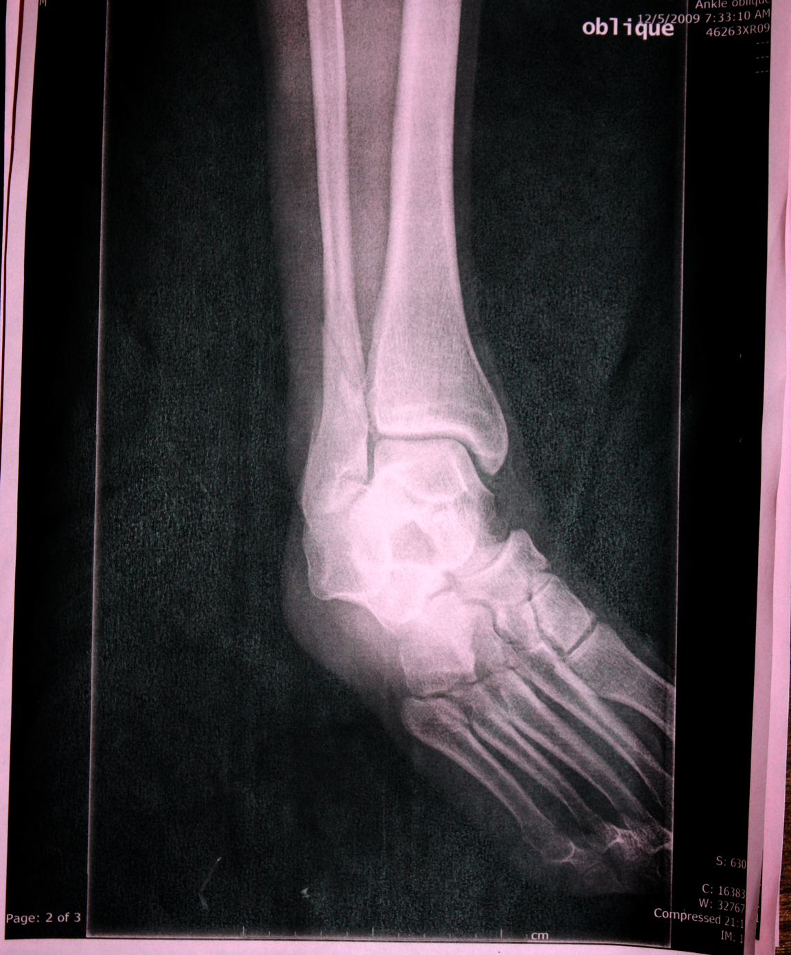 Broke My Leg